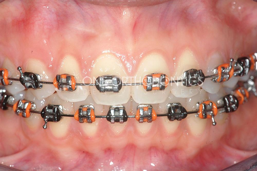 Braces Colours – One Orthodontics Dental Surgery
