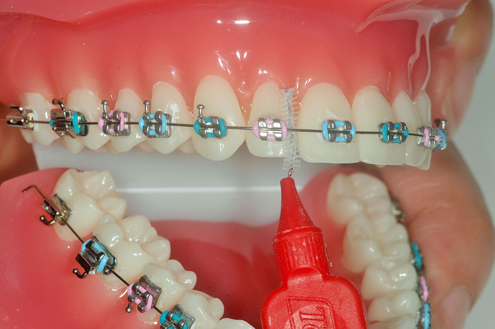 cleaning-interdental